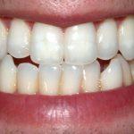 Pemutih Gigi dengan Masker Alami Aman & Nyaman