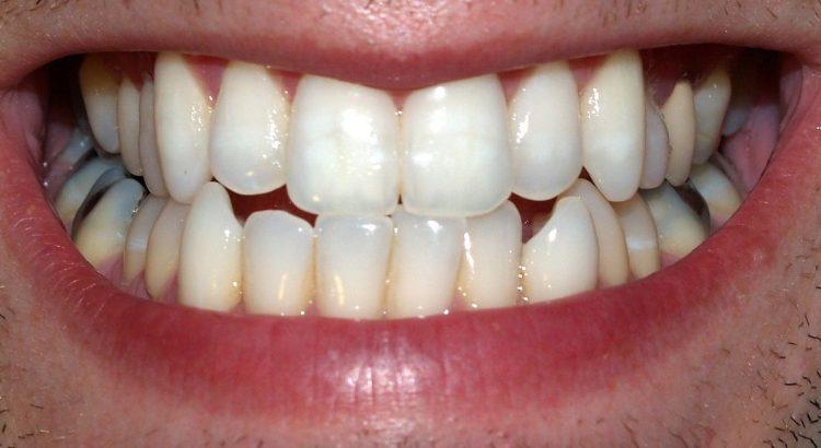 Pemutih Gigi Dengan Masker Alami Aman Nyaman