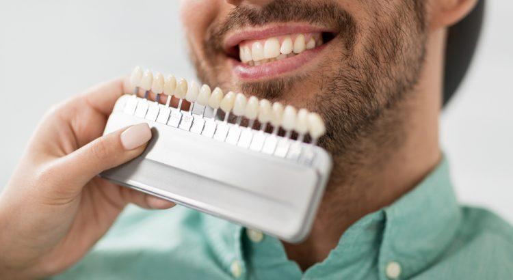 bleaching gigi