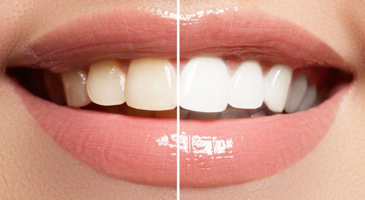 veener gigi